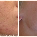 bőrfiatalítás,arcfiatalítás, dermaroller kezelés, hámlasztó kezelések, rosacea, akne heg, pigmentfolt halványítás, szemkörnyék kezelés