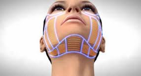 finomszálas kontúr kezelés, bioszálas kezelés, arcfiatalítás, lifting, arcfeszesítés, arcemelés
