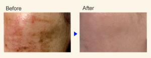 pigmentfolt halványítás, bőrfiatalítás, hidrtalásá, arckezelés, kozmetikai kezelés,pigmentfoltok, rosacea