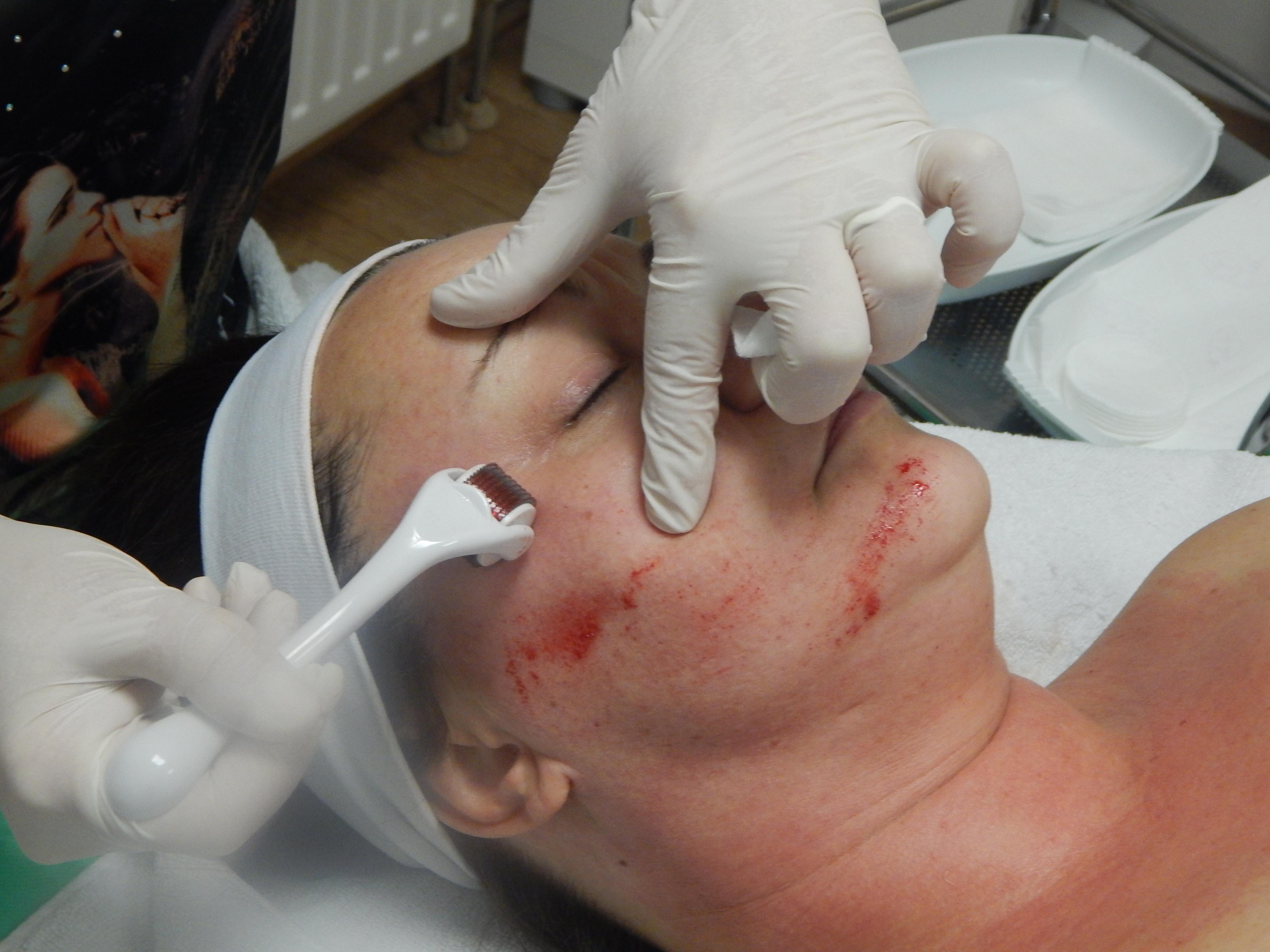 bőrfiatalítás,arcfiatalítás, dermaroller kezelés, hámlasztó kezelések,, akne heg, szemkörnyék kezelés, dermapen, mezoroller