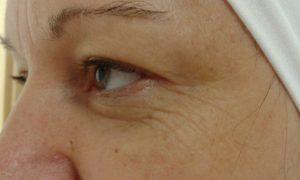 arckezelés, esztétikai kezelések, kozmetika, arctisztítás, kozmetika, ,