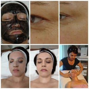 arckezelések Pécs, esztétikai kezelések Pécs, kozmetika Pécs, arctisztítás Pécs, hialuronsavas kezelés Pécs,