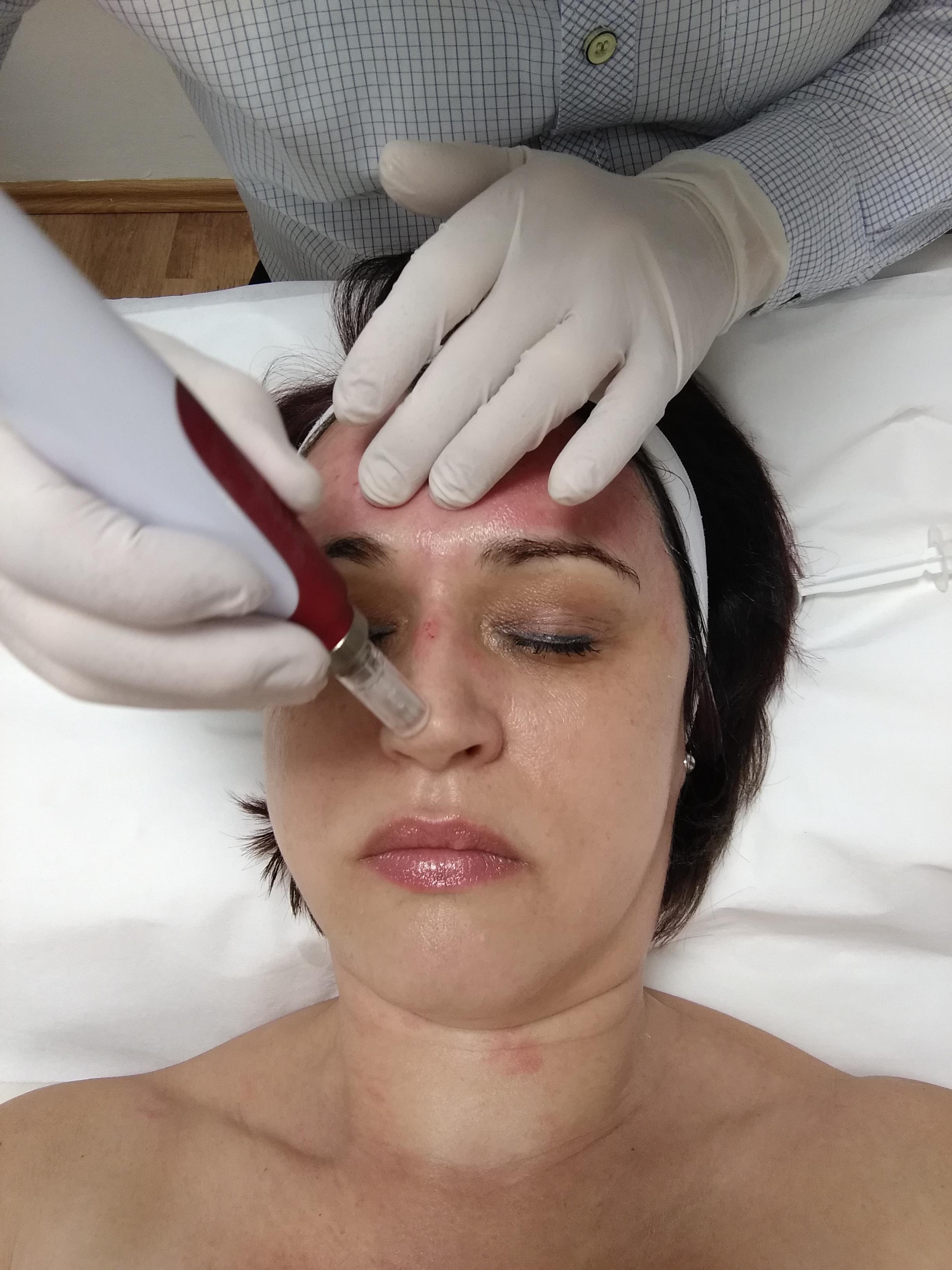 dermaroller. dermapen kezelés, stria kezelés, akne heg kezelés, bőrfiatalítás, arcfiatalítás, ránckezelés