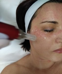 dermaroller, dermapen, mezoterápia, stria kezelés, akne heg kezelés.bőrfiatalítás, arcfiatalítás, ránckezelés