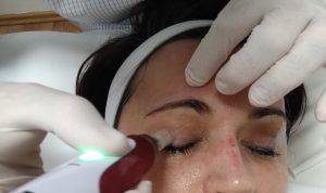 dermaroller, dermapen, akne heg kezelés, stria kezelés, bőrfiatalítás, arcfiatalítás, ránckezelés