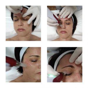 dermaroller kezelés, dermapen kezelés, stria kezelés, akne heg kezelés, bőrfiatalítás