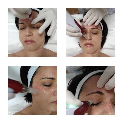 , fraxel lézer kezelés, dermaroller kezelés, dermapen kezelés, stria kezelés, akne heg kezelés, bőrfiatalítás