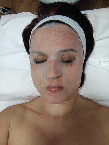 dermapen kezelés. dermaroller kezelés, esztétikai kezelés, koz,etikai kezelés, arckezelés, hyaluronsas, arcpakolás, arcmaszk