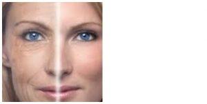 kozmetika, ránctalanítás, dermaorller, botox, hialuronsav, lézer