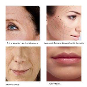 kozmetika, bőrfiatalítás, botox, hialuronsvav, lézer, dermaroller