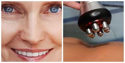 rádióferkvenciás arckezelés, testkezelés, narancsbőr, helyi zsírfelesleg kezelés, Aqualyx, arcfiatalítás, szemkörnyék kezelés