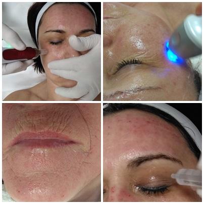 mikrorűs kezelés, fraxel lézer kezelés, rádiófrekvenciás kezelés, szemkörnyék kezelés, száj körüli ráncok,
