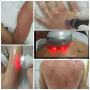 savas hámlasztás, mikrotűs kezelések, fraxel lézer kezelés, helyi zsírfelesleg kezelése, arc, nyak dekoltázs kezelés, toka kezelés