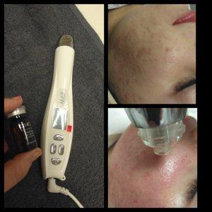 arcfiatalítás, kozmetikai pécs, akne heg kezelés, tág pórus, anti-aging, lézeres bőrfiatalítás, dermaroller