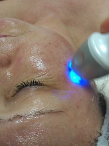 anti-aging treatment, radiofrequency treatment, cosmetispecs