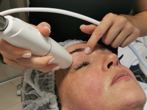 HIFU kezelés, arcfiatalítás, bőrfiatalítás, lézeres kezelés, kozmetikus pécs, Falaudi Péter, Schmelás Attila,